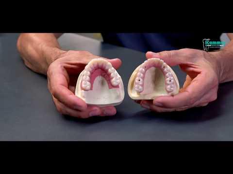 Hochwertiger Zahnersatz muss nicht teuer sein - Zahnprothesen im Vergleich