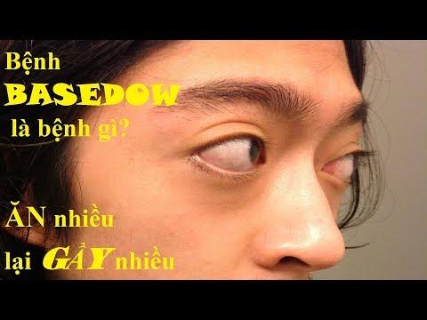 Bệnh basedow là bệnh gì? Biểu hiện của basedow trên lâm sàng