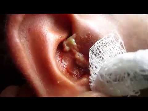 how to clean white heads on nose