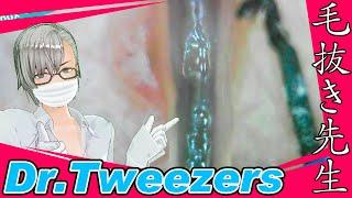 350 [200x Zoom]  Long time no see  Dr. tweezers 毛抜き先生の角栓や毛根