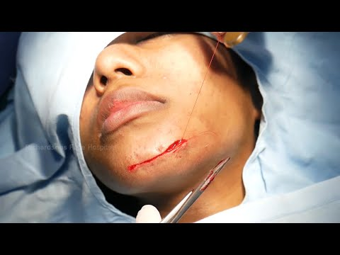 How to Remove Face Scar | Face Scar Removal Surgery by Dr. Sunil Richardson