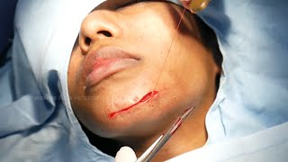 How to Remove Fące Scar   Face Scar Removal Surgery by Dr. Sunil Richardson