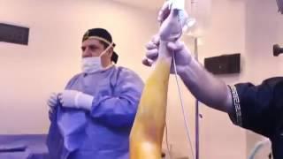 Dr.José Achar cirugía de brazos Yesica en Enamorandonos (parte 2)