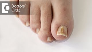 What are causes of vertical dark line on big toe? - Dr. Rajdeep Mysore
