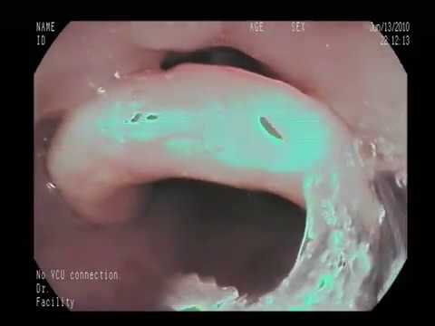 Removing A Fish Bone By The Endoscope