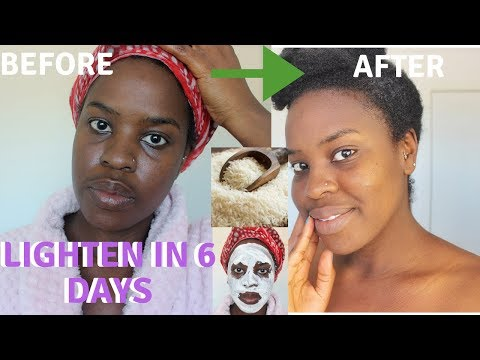 How I How i BRIGHTENED MY SKIN IN 6 DAYS  REALISTIC and Natural way to reduce hyperpigmentation