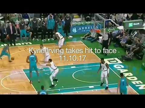 Kyrie Irving concussion concerns after hit to face. Accident? I think so.