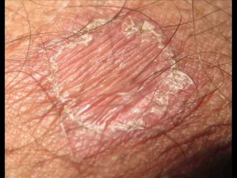 Tinea Cruris Jock Itch Api Insights 2014 Worldnews Com