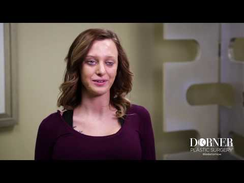 Lindsay's Story: Rhinoplasty and Breast Augmentation at Dorner Plastic Surgery