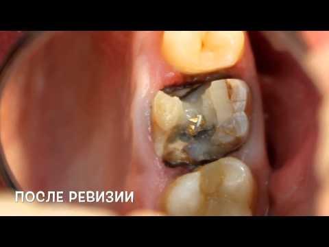Имплантация зубов: как обойтись малой кровью
