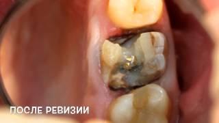 видео О зубах (ч. 7 убивать зуб под коронку или нет)