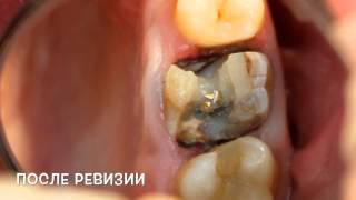 видео Ремонт скола на металлокерамическом мостовидном протезе зубов