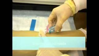 SAIT vacutainer video.wmv