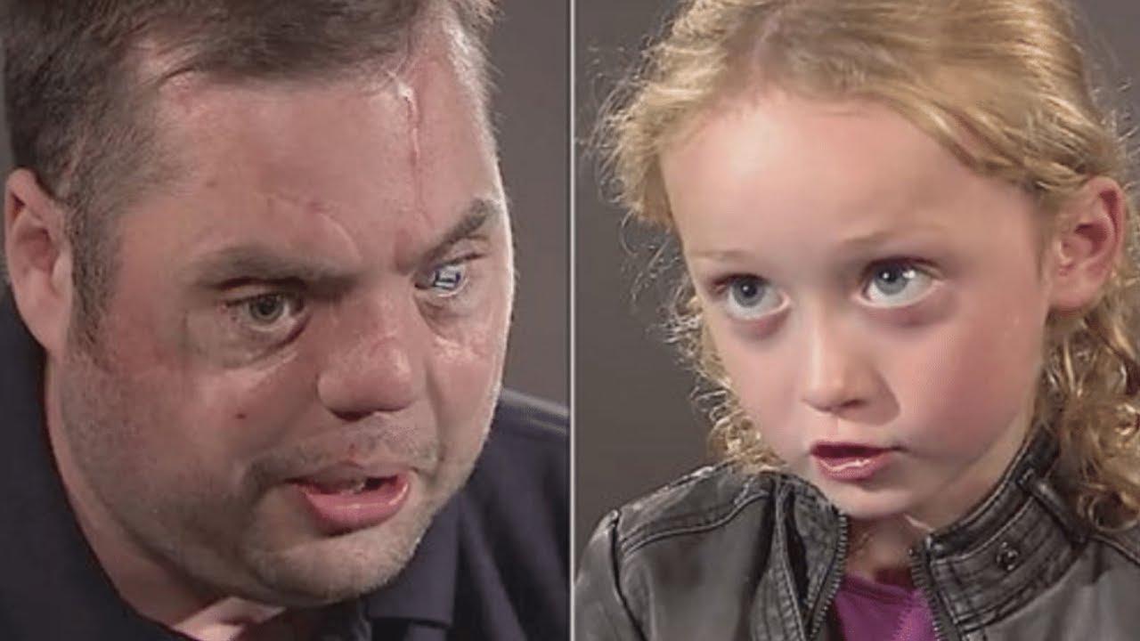 Misvormde Veteraan met Littekens zegt Hallo tegen 5-jarige. Haar Reactie Laat Miljoenen Huilen