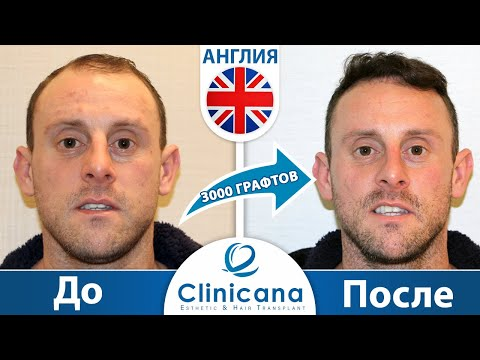 Отзыв Майкла из Ноттингема о клинике Clinicana, пересадка волос в Турции, лечение облысения