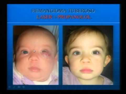 hemangioma plano recem nascido