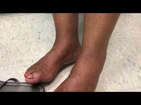What's Wrong with My Feet?  Fungal Foot Infections