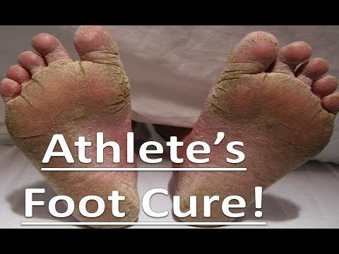 The Truth About Healing Athlete's Foot Fungus!