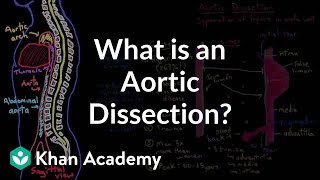 What is an aortic dissection? | Circulatory System and Disease | NCLEX-RN | Khan Academy