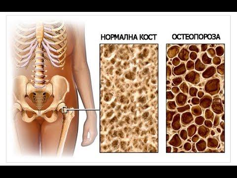 костной ткани фото