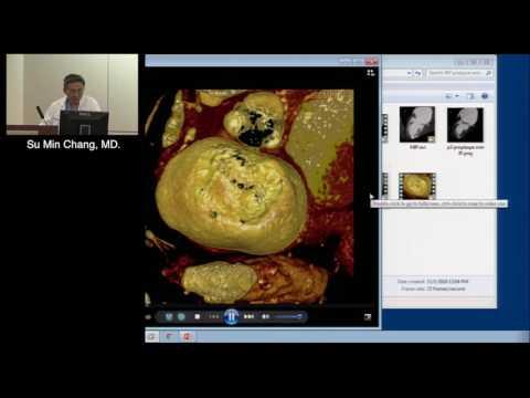 Coronary Imaging with CTA: Methodology, Advantages and Pitfalls (Su Min Chang, MD) November 1, 2016