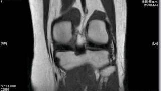 My Knee MRI