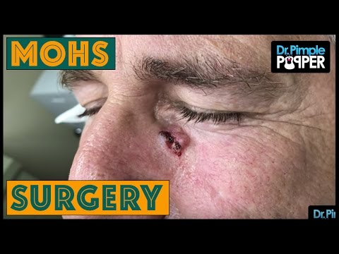 MOHs Surgery: Basal Cell Carcinoma - Pt. 1