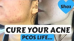 hqdefault - Diet For Pcos Acne
