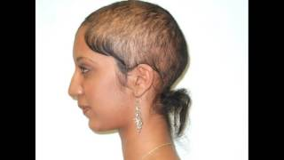 Scalp Infection Leads To Hair Loss Treatment Options