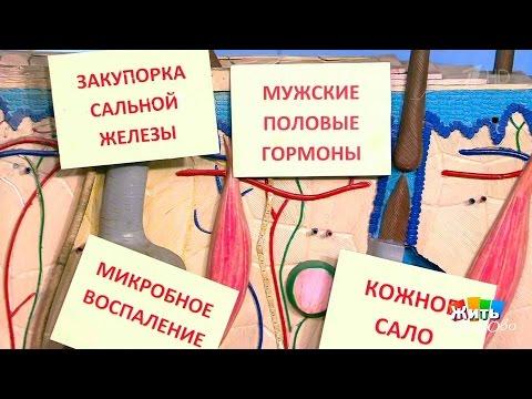 Жить здорово! Препараты отугревой болезни. (17.01.2017)