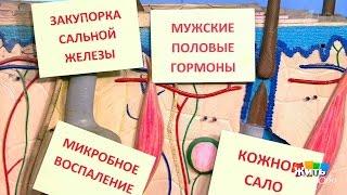 постер к видео Жить здорово! Препараты отугревой болезни. ()