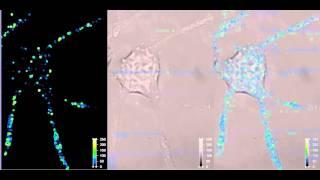 神経細胞における、シナプス小胞輸送の共焦点イメージ