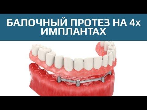 Полная имплантация при полном отсутствии зубов: виды и