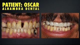 Loose teeth and dental phobia