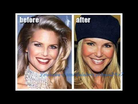 Christie Brinkley Plastic Surgery Before and After HD