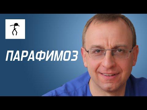 ПАРАФИМОЗ. Уролог, андролог, сексопатолог - Алексей Корниенко