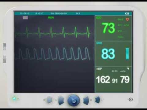 EKG/ECG Monitor animation Lop