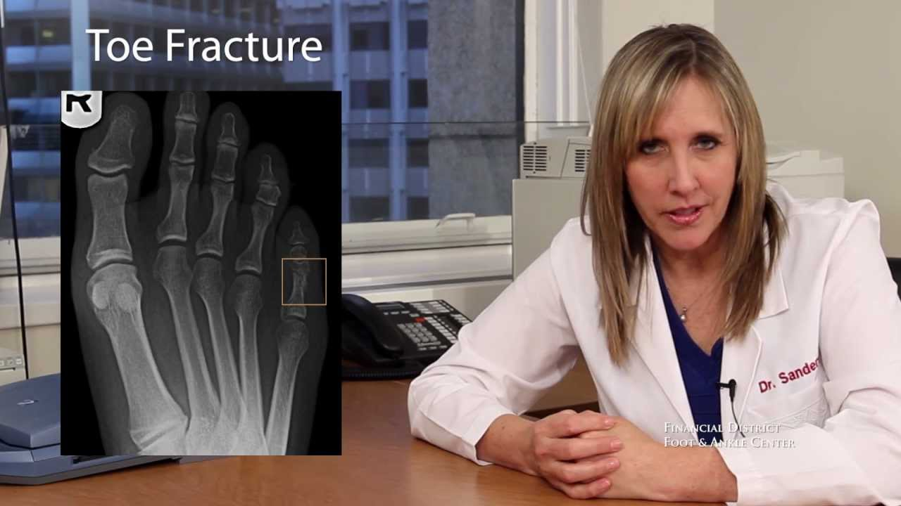 Buddy Splint For Toe Fractures San Francisco Podiatrist Youtube