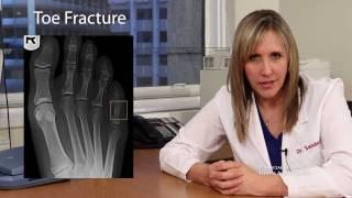 Buddy Splint for Toe Fractures - San Francisco Podiatrist