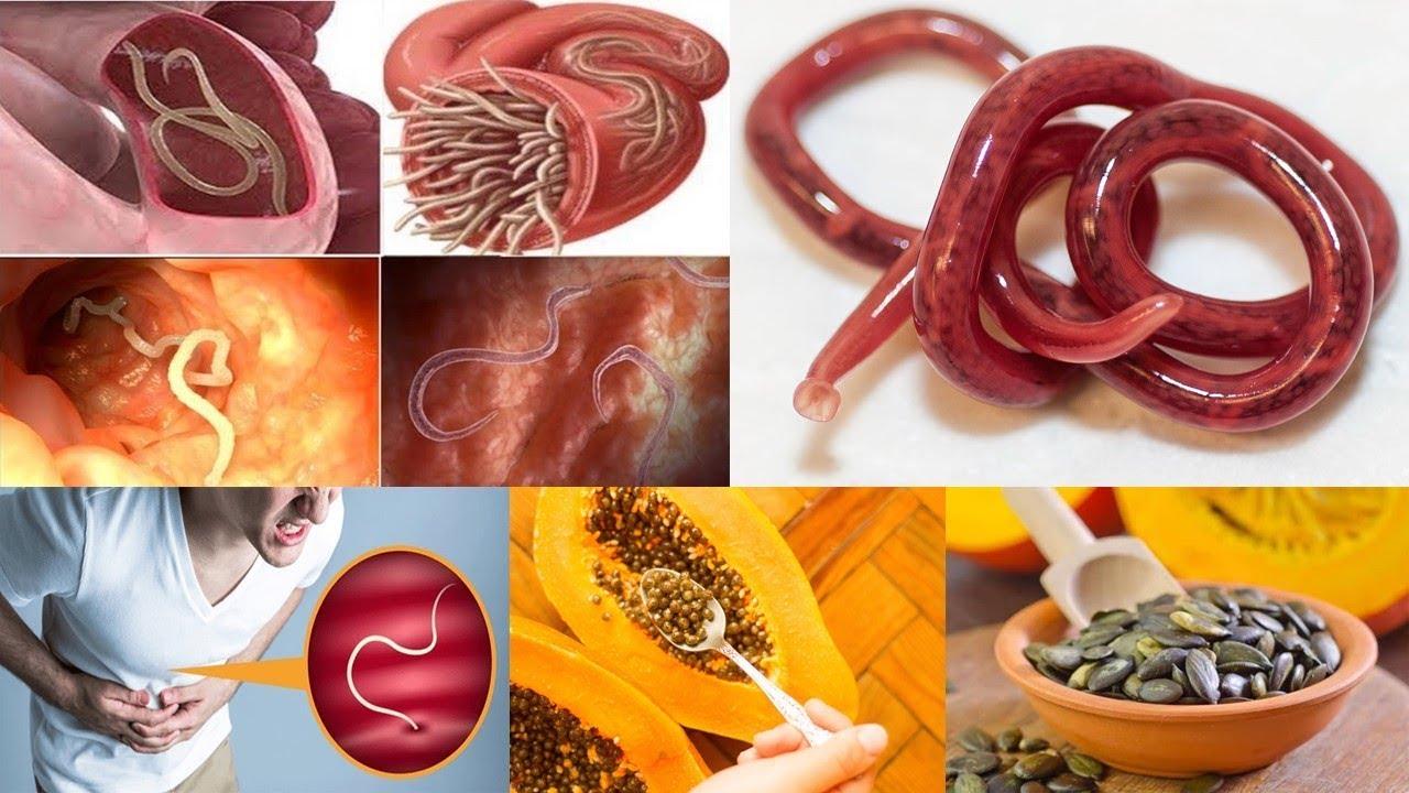 medicina natural para desparasitar adultos