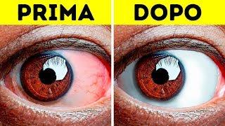 10+ Esercizi Facili per Alleviare gli Occhi Stanchi