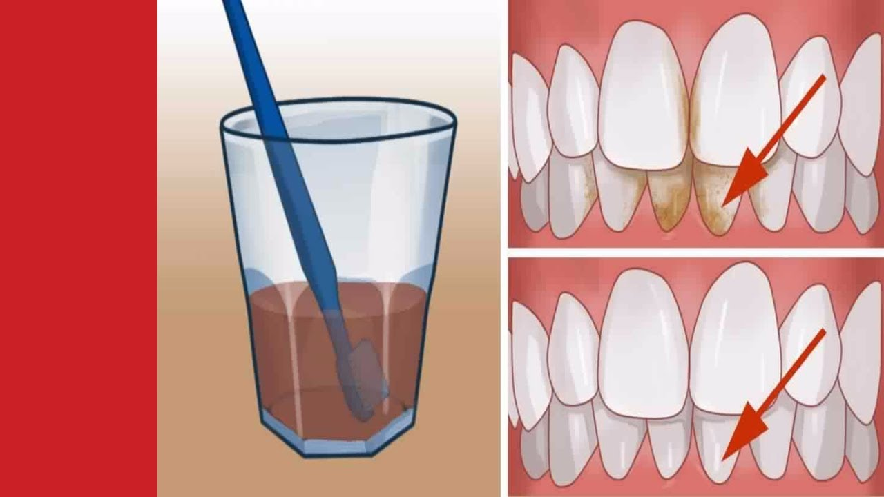 voici comment supprimer les plaques dentaires et blanchir vos dents gr ce aux bicarbonate de. Black Bedroom Furniture Sets. Home Design Ideas