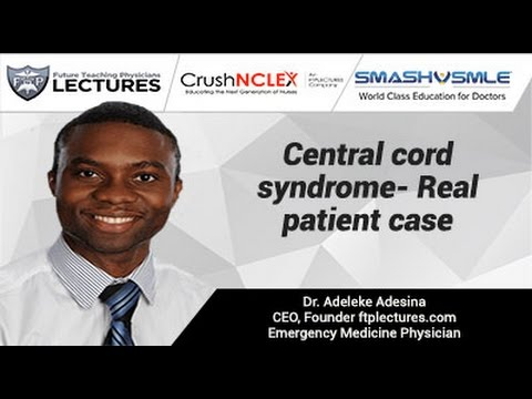 Central cord syndrome- Real patient case