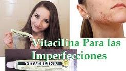 hqdefault - Vitacilina Buena Para El Acne
