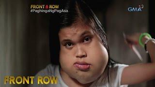 Front Row: 14-taong dalagita, may kakaibang bukol sa pisngi at bibig