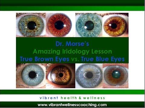 Dr. Morse's Amazing Iridology Lesson:  True Brown Eyes vs. True Blue Eyes