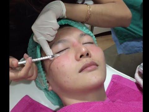 Botox หน้าเรียว ลดริ้วรอย แบบเห็นผล 100%