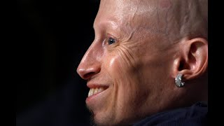 5 things about Verne Troyer