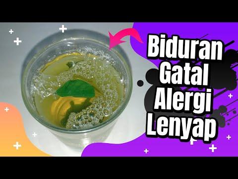 cara-mengatasi-biduran-dengan-obat-alami-|-biduran-&-gatal-alergi-lenyap