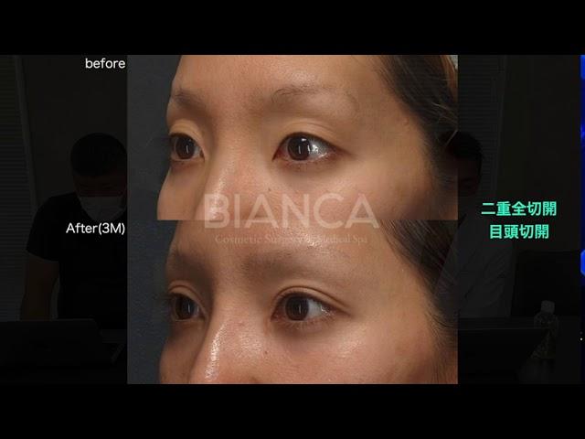 【よくわかる二重全切開、目頭切開、ヒアルロン酸注入症例解説】BIANCA CLINIC
